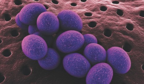 staphylococcus_4_640